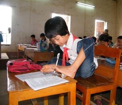 Lê Thị Thắm, SN 1998, sinh ra đã không có tay